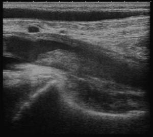 深部静脈血栓症(エコノミークラス症候群)